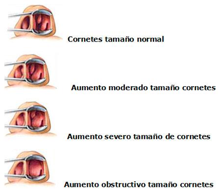 Reducción de cornetes nasales